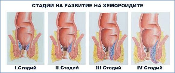 фигура 2 Стадии на хермороидалната болест